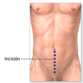 Caso clínico: Dehiscencia de Prostatectomía abdominal
