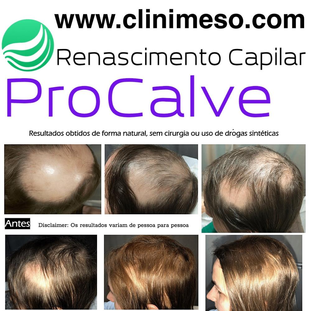 Clinica de Tratamentos Alopecia Lisboa