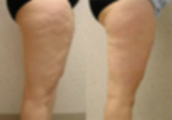 Clínica de Mesoterapia para Celulite em Lisboa e Montijo com 30% Desconto