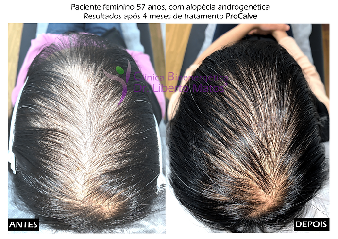 tratamento-natural-queda-cabelo-lisboa-m