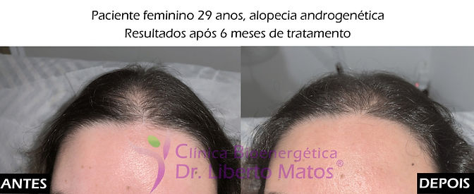 Tratamento-capilar-alopecia-montijo-lisboa-sem-implante.jpg