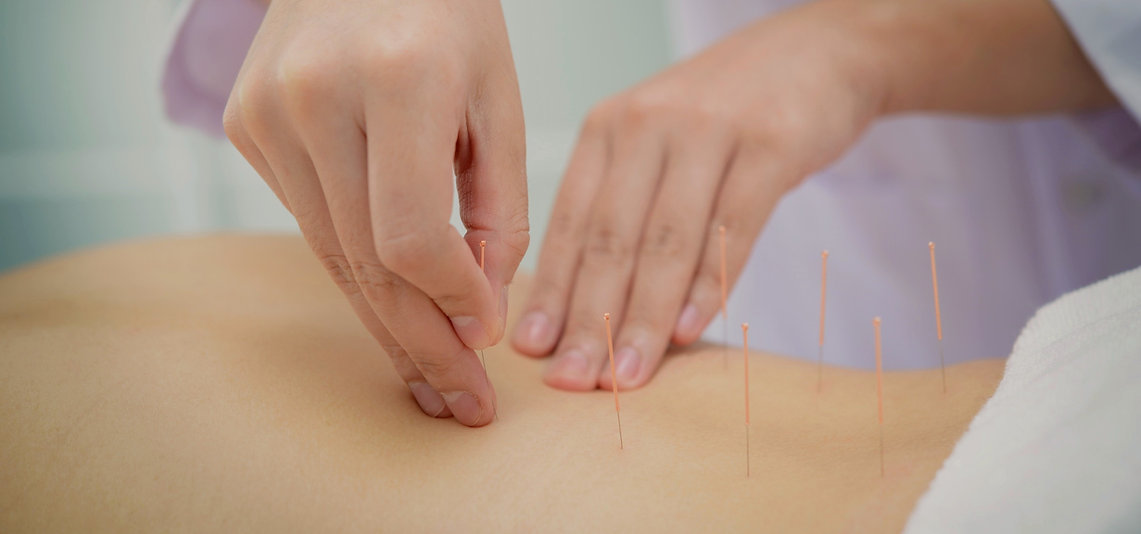 promocoes-acupuntura-clinica-liberto-mat