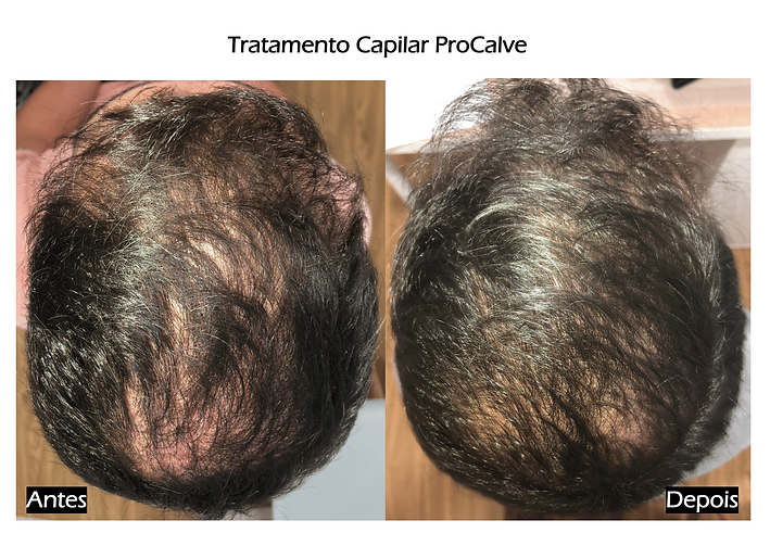 Tratmento Alopecia RS Clinicas Dr.Libert