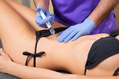 tratamento-celulite-estrias-mesoterapia-lisboa-montijo