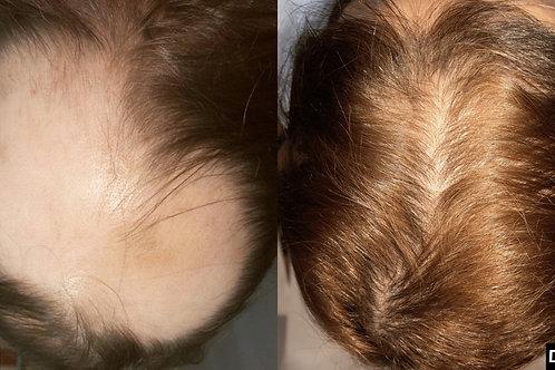 Tratamento-alopecia-queda-cabelo-lisboa-montijo