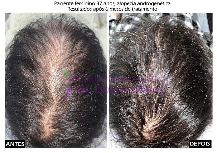 queda-cabelo-tratamento-natural-lisboa-m