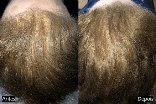 Tratamento-queda-cabelo-alopecia-lisboa-montijo