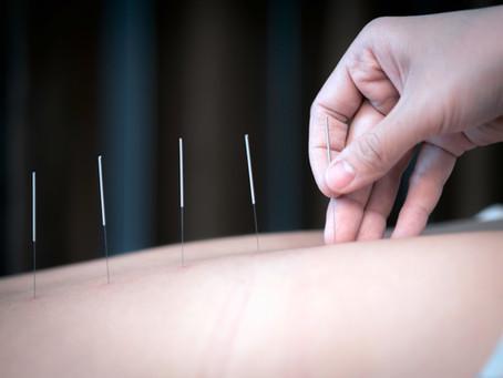 Acupuntura reduz a dor no cancro e também o uso de analgésicos, segundo estudo
