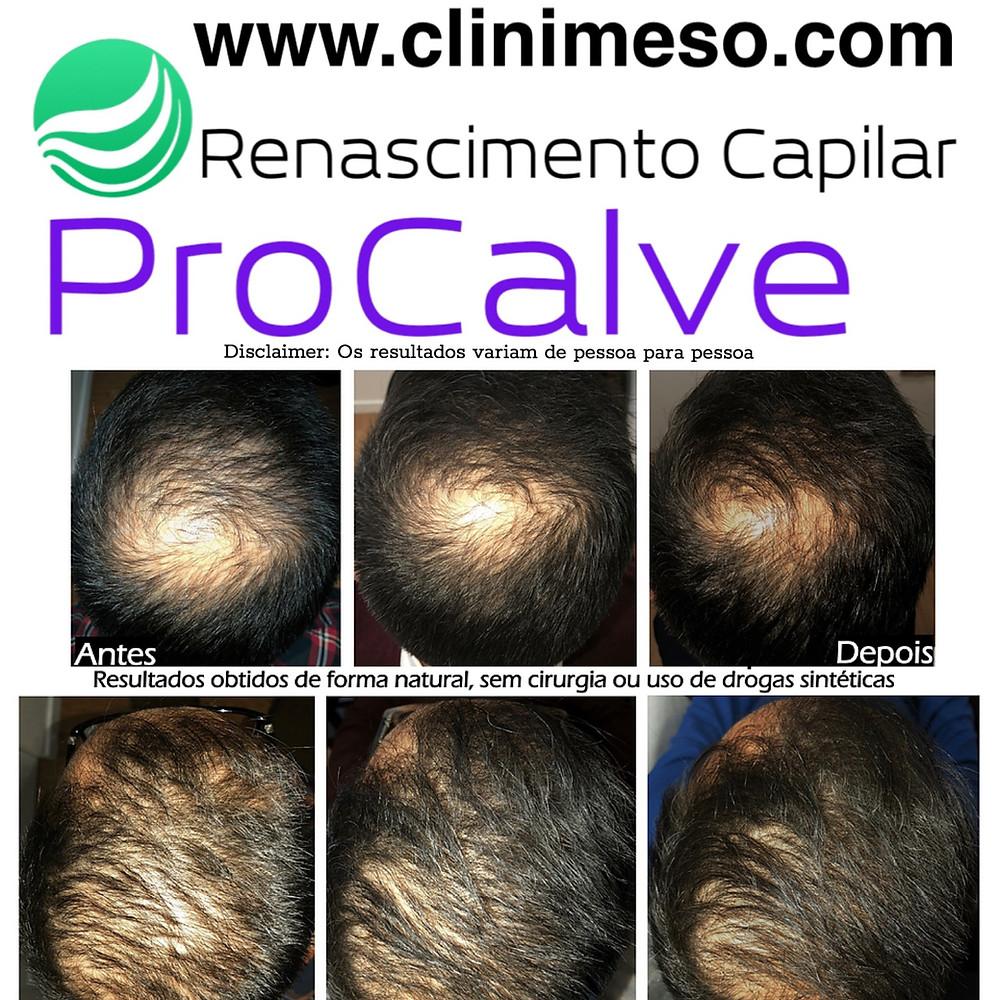 Clinica de Tratatmentos Alopecia Lisboa