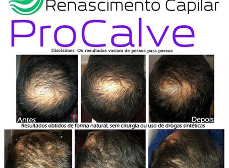 Os melhores tratamentos naturaispara a queda de cabelo