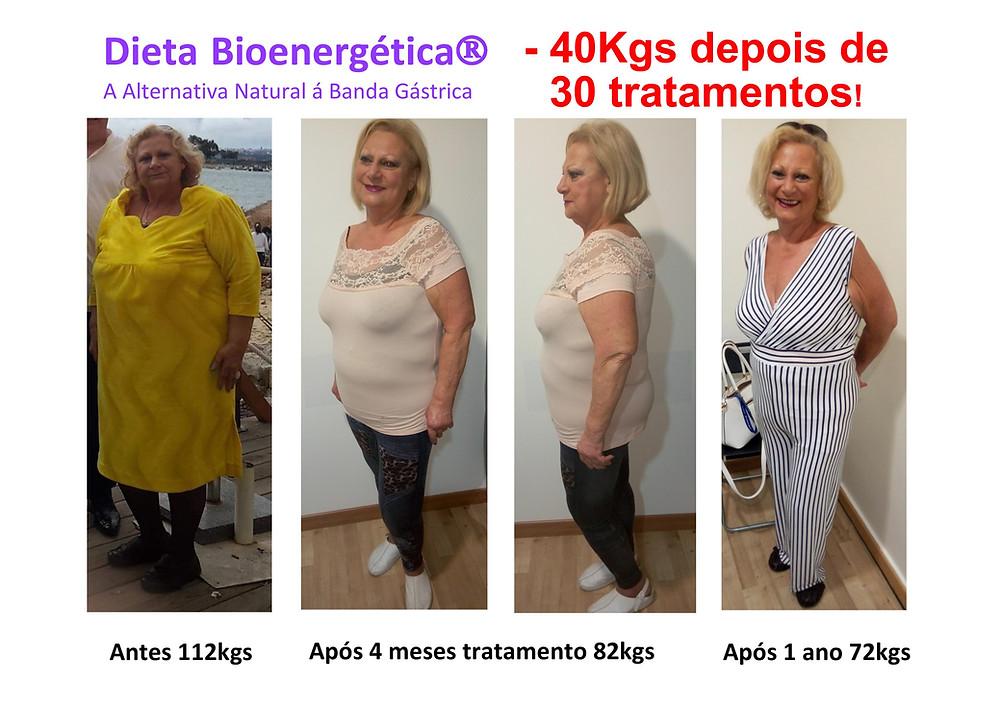 Perca 40 Kgs sem esforço com Acupuntura Bioenergética. Clínicas Dr.Liberto Matos em Lisboa e Montijo
