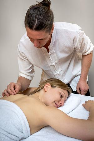 Dean Wickenden Acupuncture