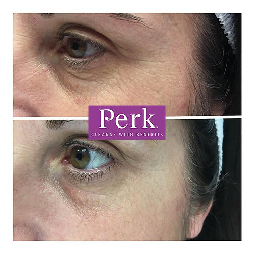 Eye Perk Treatment