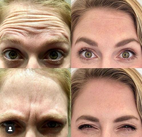 60 Units of Botox