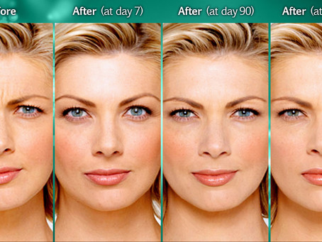 How investing in Botox is better than its alternatives?