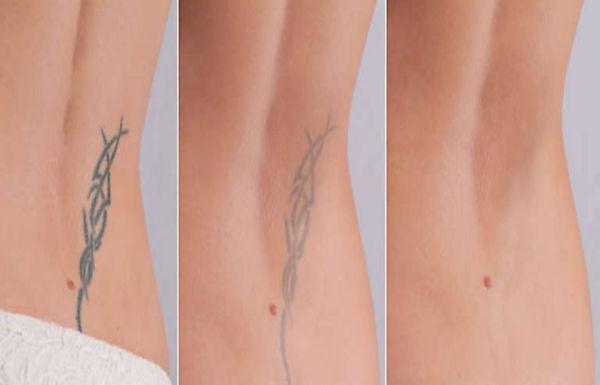 Tattoo Treatment.jpg
