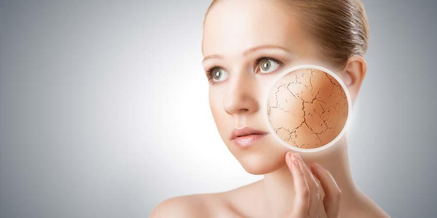 Dry Skin (Skyn Stories by Dr Meenu Sethi)