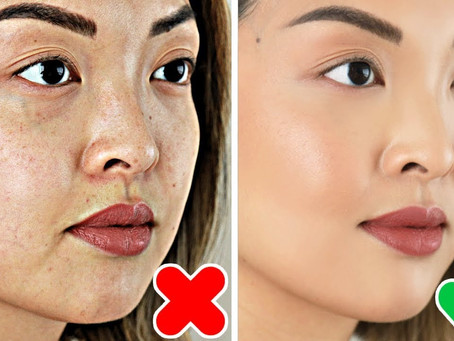 Hyperpigmentation - Causes, Types, and Treatments