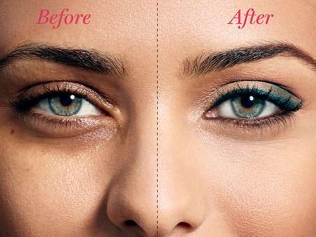 Tips to Get Rid of Sunken Eyes