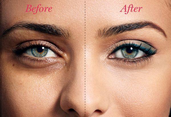 Tips to get rid of sunken eyes by Dr Meenu Sethi