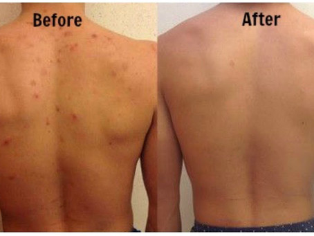 Back Acne - Treatment and Prevention