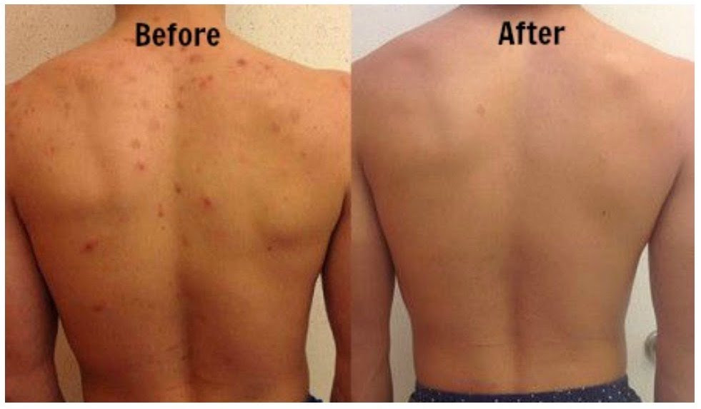 Back Acne - Treatment and Prevention (Skyn Stories By Dr Meenu Sethi)