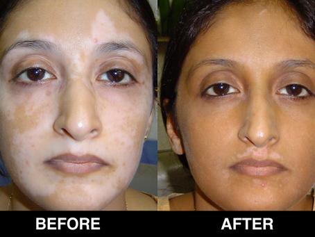 Vitiligo Treatment - Diagnosis, Symptoms and Causes