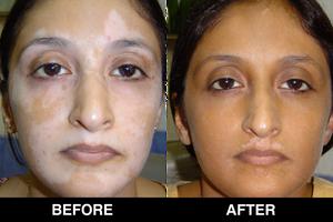 Vitiligo Treatment (Skyn Stories by Dr Meenu Sethi)