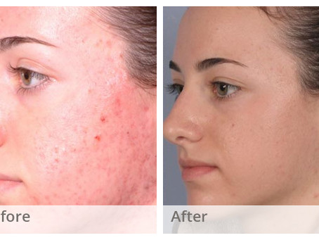 Chemical Peeling for Acne