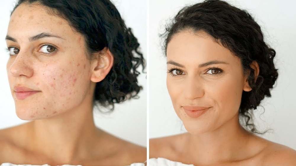Pigmentation & Scars Tips, Remedies and Treatment | Dr Meenu Sethi