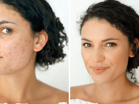 How to Hide Pigmentation and Scars
