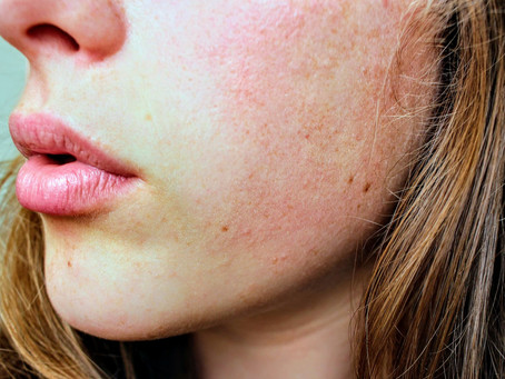 ACNE TREATMENT IN GURGAON BY BEST DERMATOLOGIST