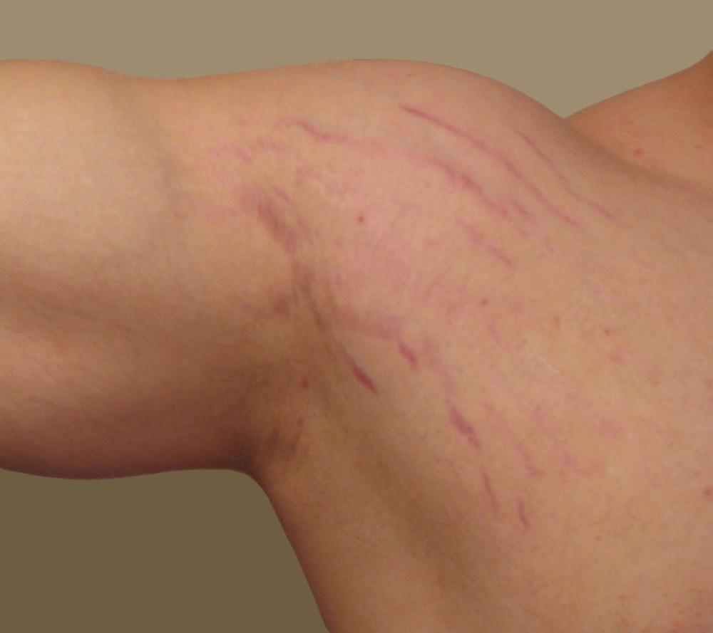 Stretch Marks from Bodybuilding by Dr Meenu Sethi