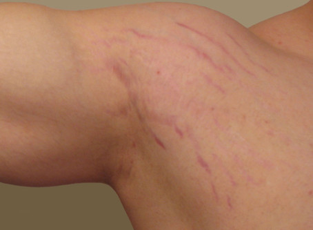 Stretch Marks from Bodybuilding