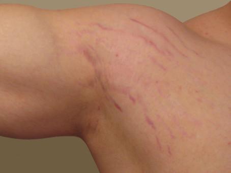 Stretch Marks from Bodybuilding