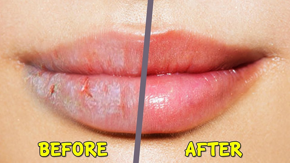 Chapped Lips Treatments (Skyn Stories by Dr Meenu Sethi)