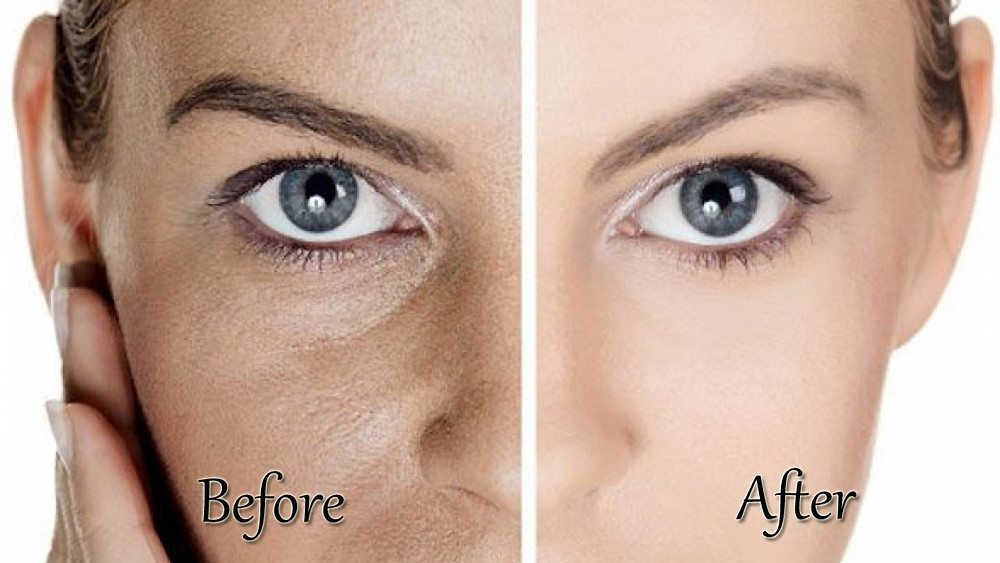 Enlarge Pores Treatment (Skyn Stories by Dr. Meenu Sethi)