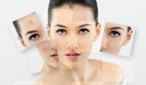 Pigmentation Marks & Tanning.jpg