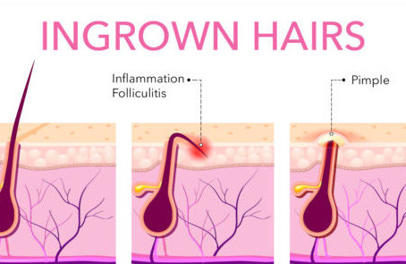Ingrown Hair - Treatment and Prevention
