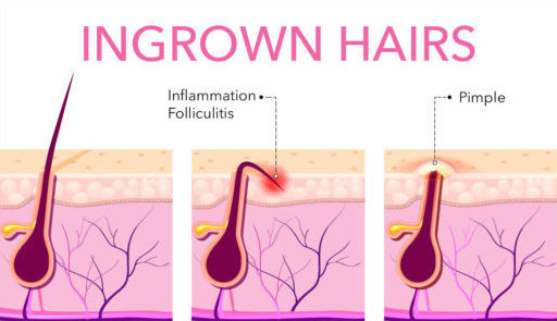 Ingrown Hair - Treatment and Prevention (Skyn Stories By Dr Meenu Sethi)