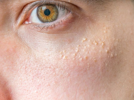 White Bumps on Your Face