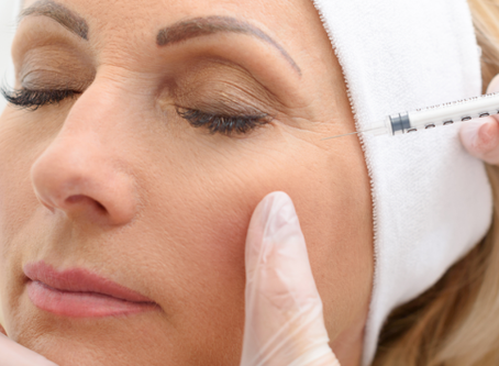 Botox Injections - Procedure, Benefits and Side-Effects