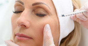 Botox Injections- Procedure, Benefits and Side-Effects (Skyn Stories by Dr Meenu Sethi)