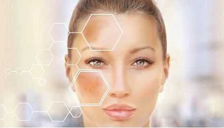 Hyperpigmentation - Causes, Types and Treatments