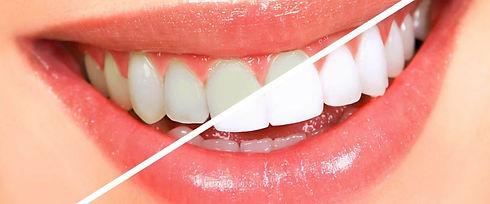 teeth-whitening-hd-oh5rfet7enc81ptb1bcfr