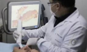 Escaneamento intra-oral. O que é?
