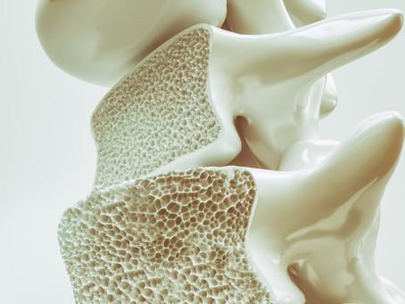 Παγκόσμια Ημέρα Οστεοπόρωσης η Χορτοφαγική Διατροφή Ασπίδα των οστών.