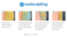 Coolsculpting procedure diagram