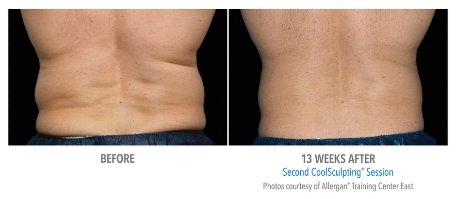 Coolsculpting Only