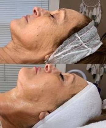 Joanna-Cryoskin-3.0-3-facials.jpg